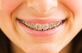 Fast braces | Dayton, OH | Michael L. Ortman, D.D.S.  | 937-276-3172