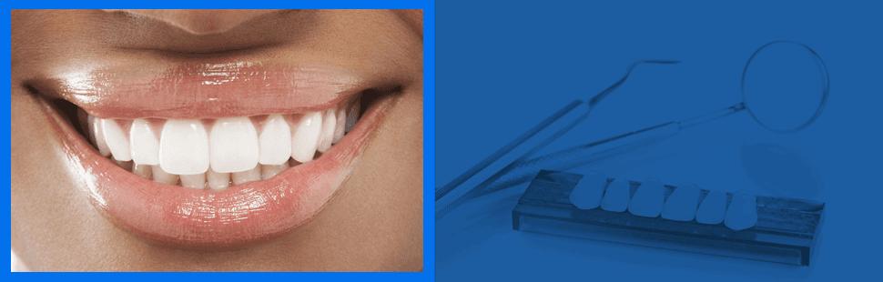 Gum disease | Dayton, OH | Michael L. Ortman, D.D.S.  | 937-276-3172