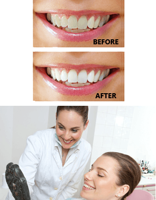 Before and After  | San Antonio, TX | San Pedro Smiles Dental Center | 210-737-6900