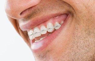 Family Dentistry | Dumont, NJ | Gottlieb Nathan DMD | 201-385-2849
