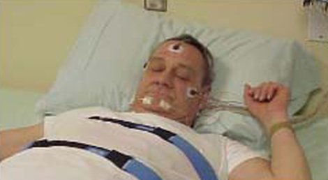 Narcolepsy   St Petersburg, FL   St. Petersburg Sleep Disorders Center   727-360-0853