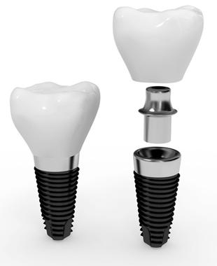 Dental artificial implants