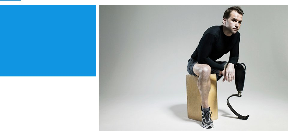 Orthotic services | Fort Collins, CO | Prosthetic & Orthotic Group Inc. | 970-416-9357