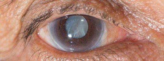 Glaucoma Treatment West Point, NE