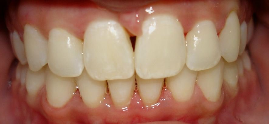 Invisalign - After