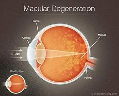 Macular Degeneration - Edmond, OK - Cataract Institute of Oklahoma - 405 - 834 - 0532