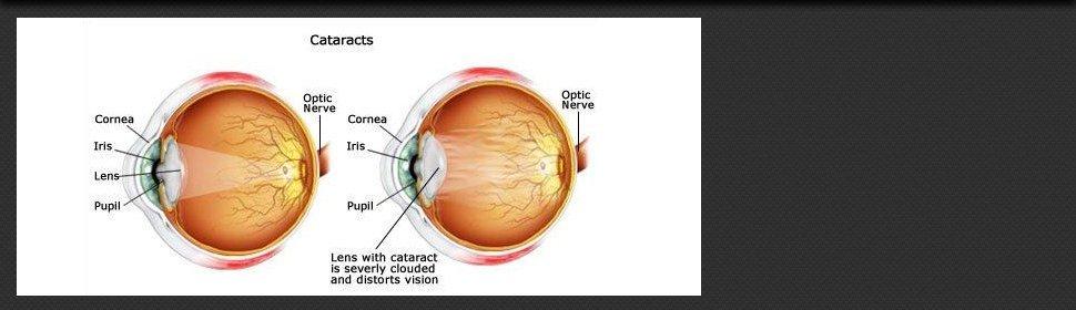 Eye Drops | Edmond, OK | Cataract Institute of Oklahoma | 405-834-0532