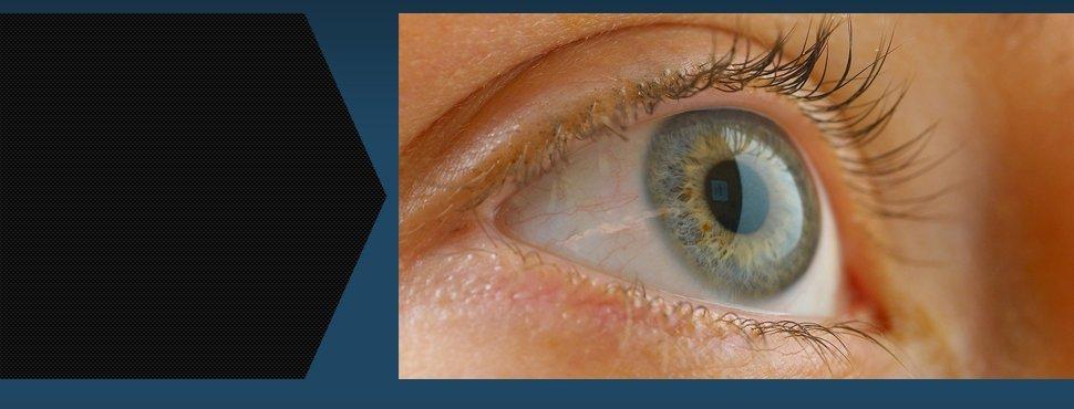 Dry Eyes | Luzerne, PA | Main Optical | 570-283-0870