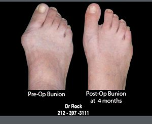 Photo and X-Ray Gallery | New York, NY | Midtown/57th Street Foot & Ankle Specialists