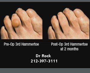 Photo and X-Ray Gallery | New York, NY | Midtown/57th Street Foot & Ankle Specialists  | 212-397-3111