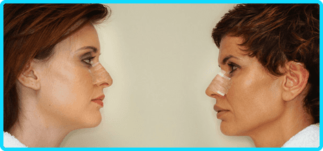 cosmetic surgery | Oneonta, NY | Ear Nose And Throat Associates Of Oneonta PC | 607-432-1355
