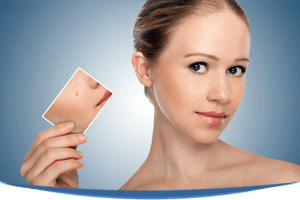 Skin Treatment Newton, MA