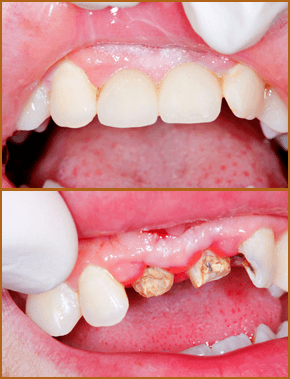 Root canal before and after