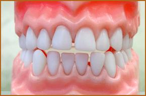 Dentures teeth