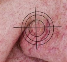 Skin Cancer Page small photo