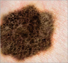 Melanoma Pic for Mohs Skin Cancer Page Header