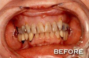 BEFORE PICTURE | Dakota Dental & Implant Center | Rosemount, MN