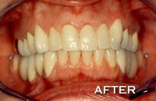 AFTER PICTURE | Dakota Dental & Implant Center | Rosemount, MN