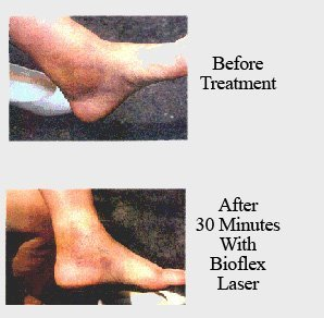 Portrait of before and after using Bioflex laser