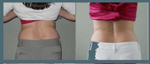 Laser Fat Reduction | Body Light Lipo Fat