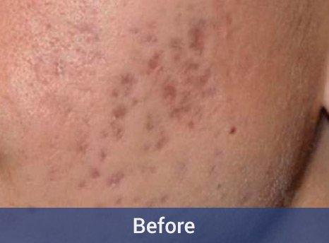 Reborn Skin Care