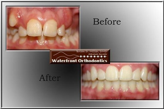 Before and after dentistry