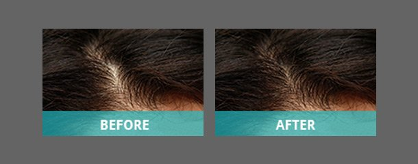 Before and after image of hair restoration