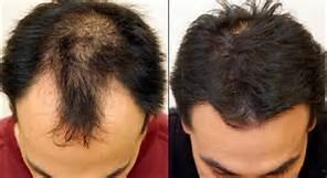 Happy man after hair restoration