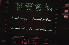 Medical equipment rentals | Effingham, IL | Novatek Medical | 217-347-1011