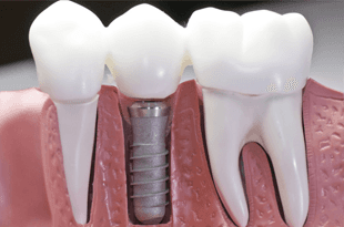 Dental Implant Crowns, Implant Supported Dentures | Iowa City, IA - T.K. Downes, DDS