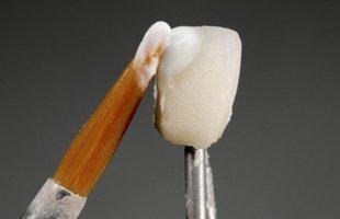 Porcelain Dental Veneers | Iowa City, IA | T.K. Downes, DDS | 319-337-4121