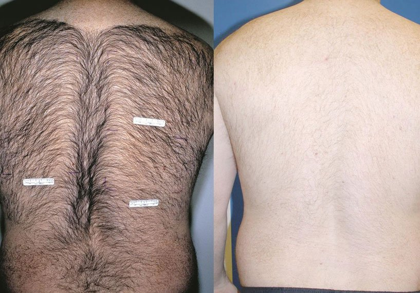 Hair removal treatment after and before