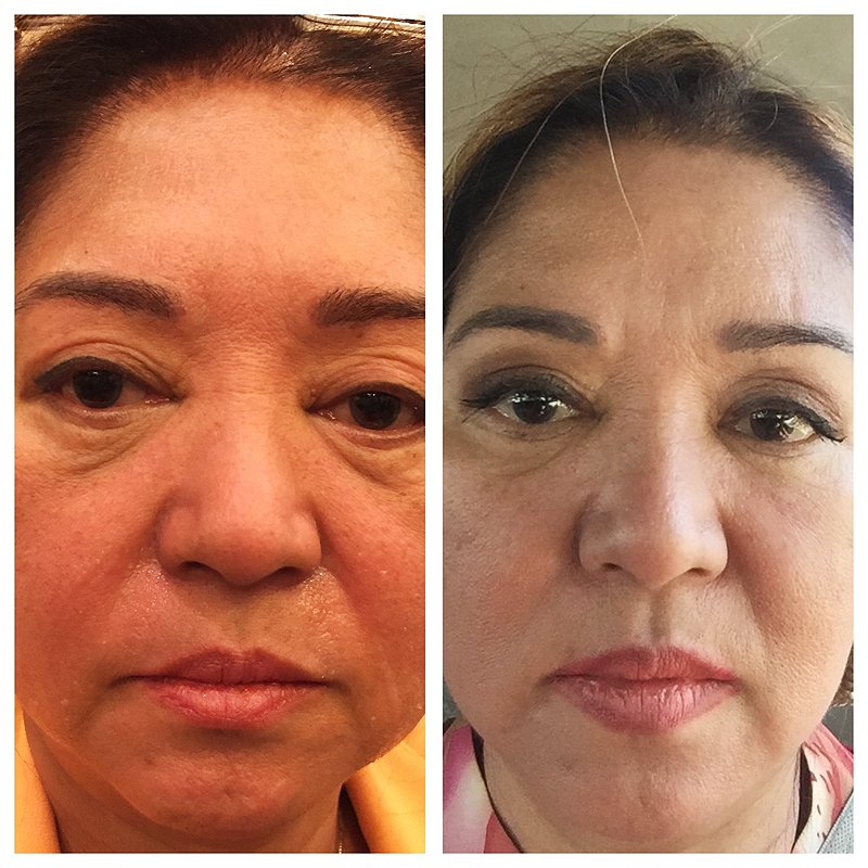 wrinkle treatment after and before