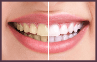 Woman with beautiful smile before and after