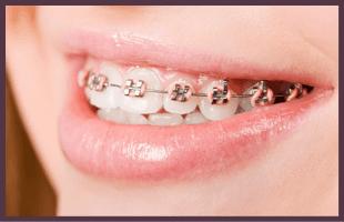 Dental Braces   Cedar Rapids, IA   Cedar Rapids Family Dental Center P.C.   319-364-3221
