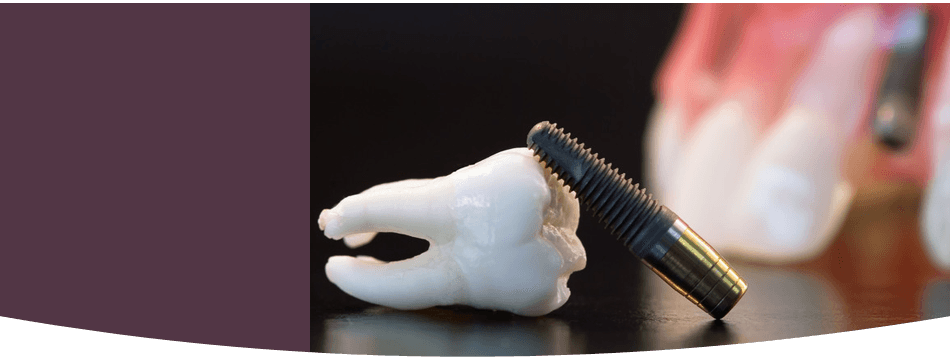 Tooth implant and teeth model