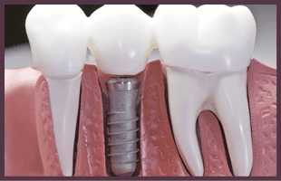 Model shows the dental implants process