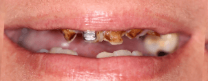 CONVENTIONAL DENTURES BEFORE