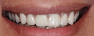 CONVENTIONAL DENTURES AFTER