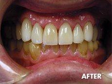 Cosmetic dentistry  | Montrose, CA | Stephen J. Giovanisci, D.D.S. | 818-248-1718