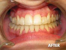 Orthodontics    Montrose, CA   Stephen J. Giovanisci, D.D.S.   818-248-1718