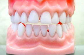 Tooth Sensitivity   Tecumseh, OK    Charles A. Sims, Jr., DDS   405-598-6518
