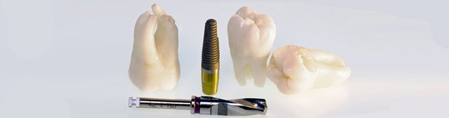 Teeth implant
