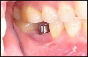 Dental implants | Houston, TX | A.K. Lane DDS | 281-286-5556