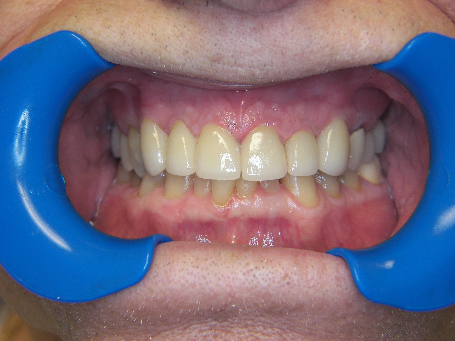 Full Mouth Reconstruction using multiple disciplines