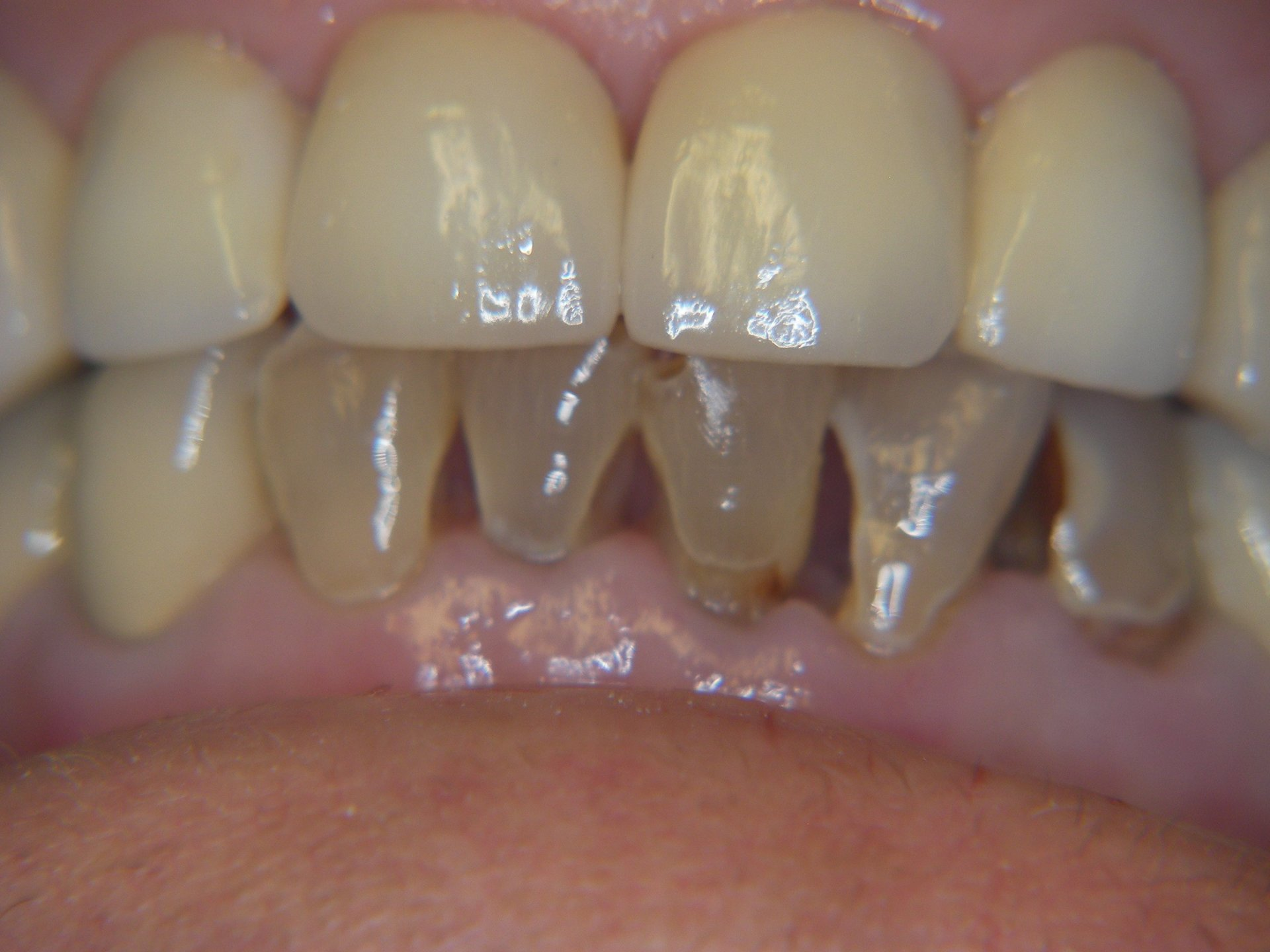 Reconstruction using implant dentistry