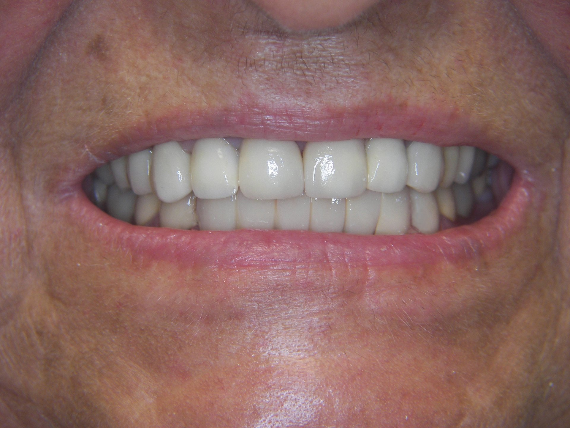 Cosmetic Reconstruction
