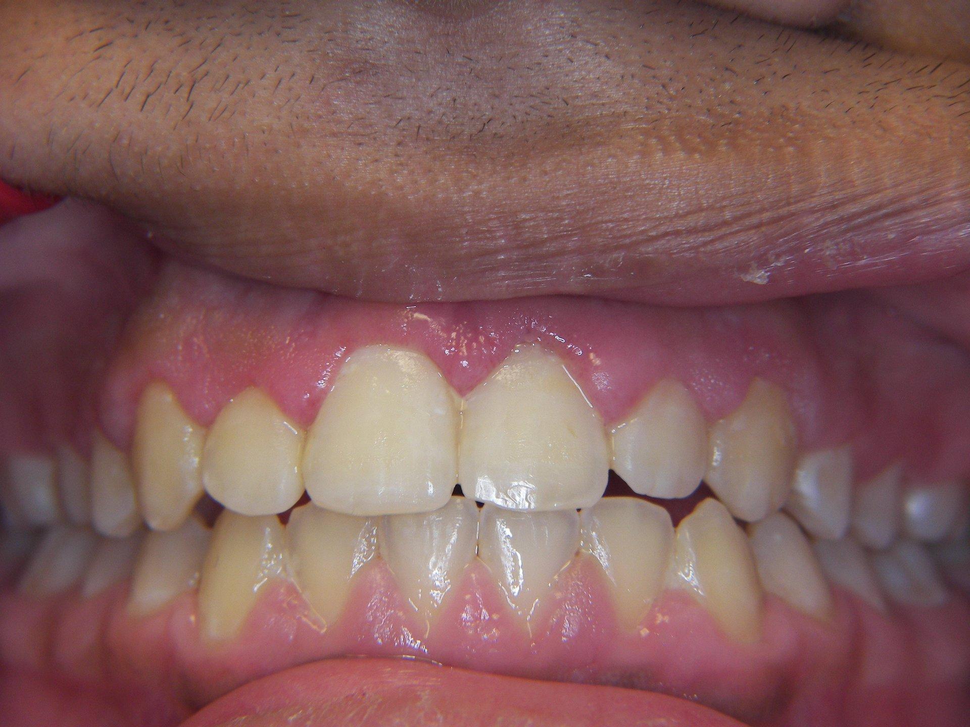 Periodontal Gum Surgery