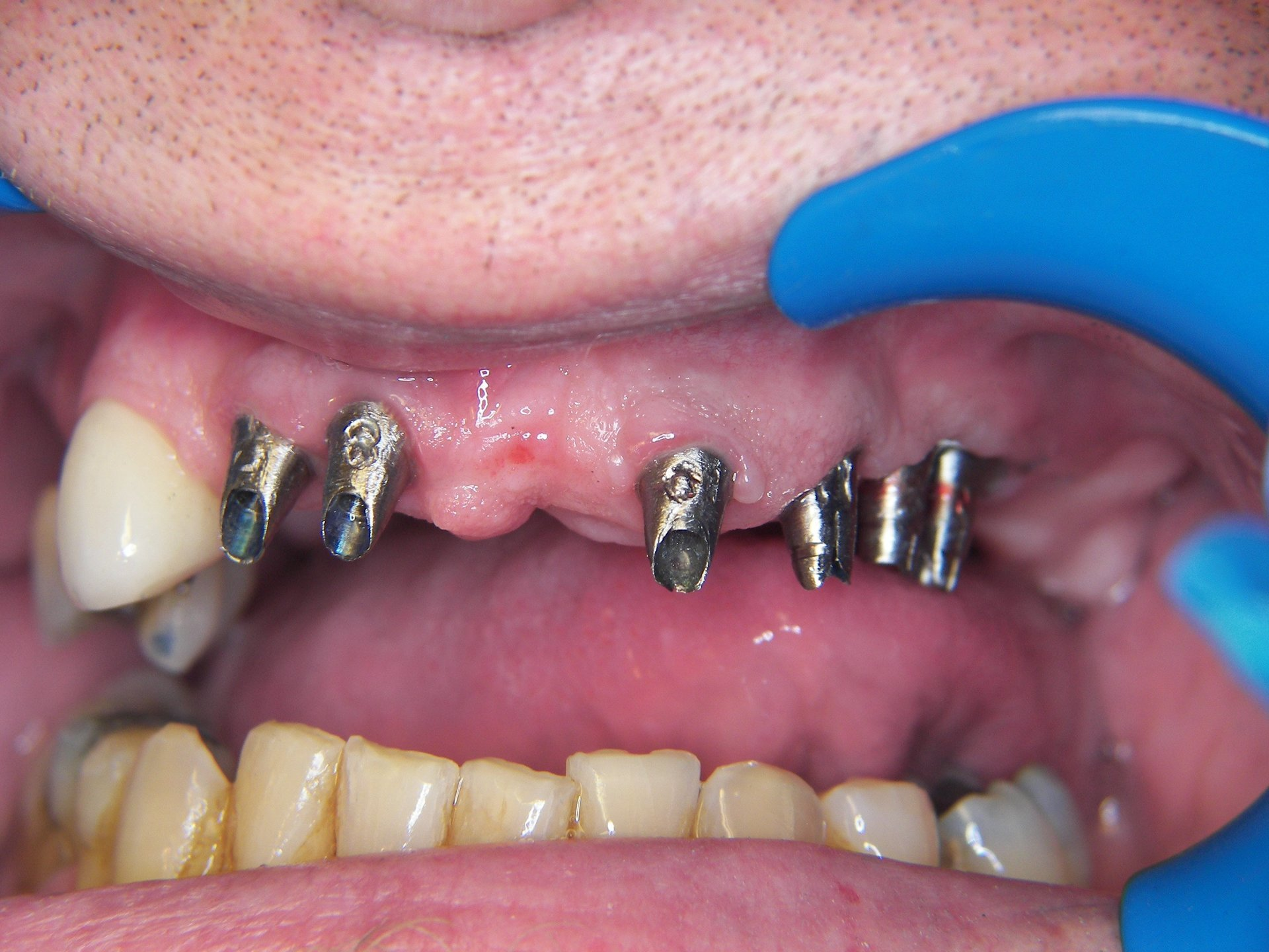 Full mouth reconstruction using implants