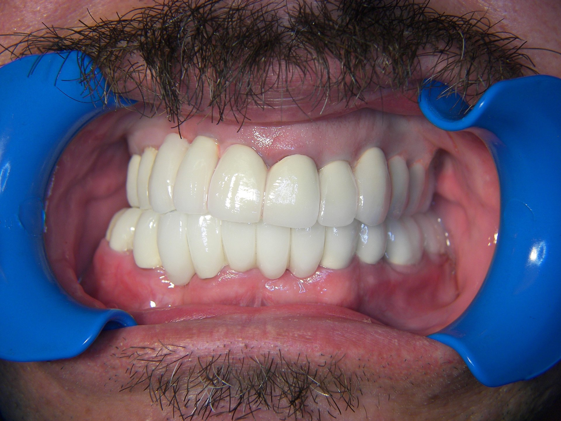Mouth Reconstruction with Cosmetic Dentistry